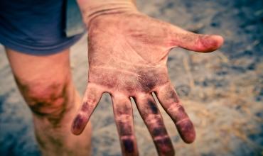 О чем расскажут отпечатки пальцев